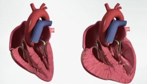 hart-zonder-en-met-hartfalen