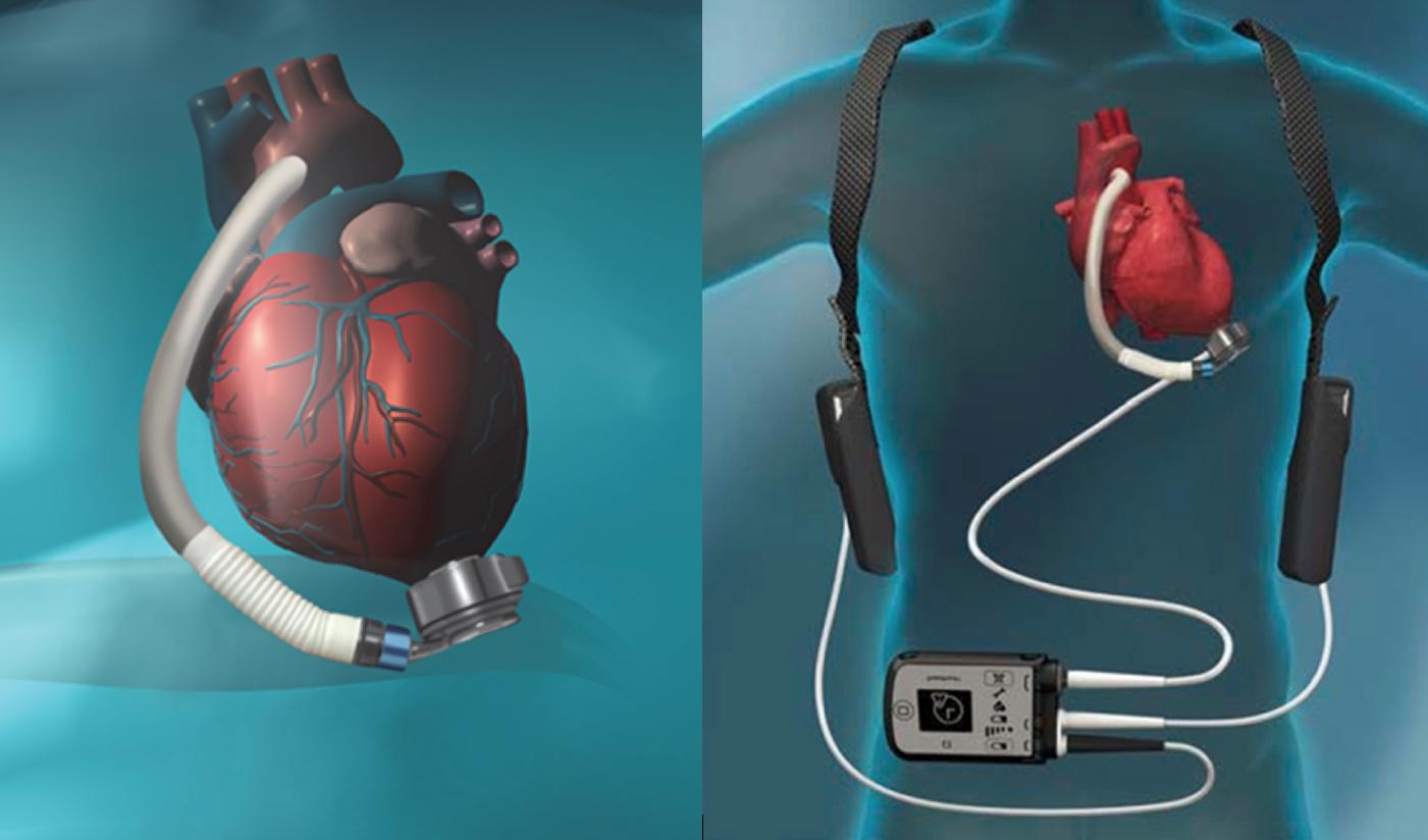 HeartMate en HVAD