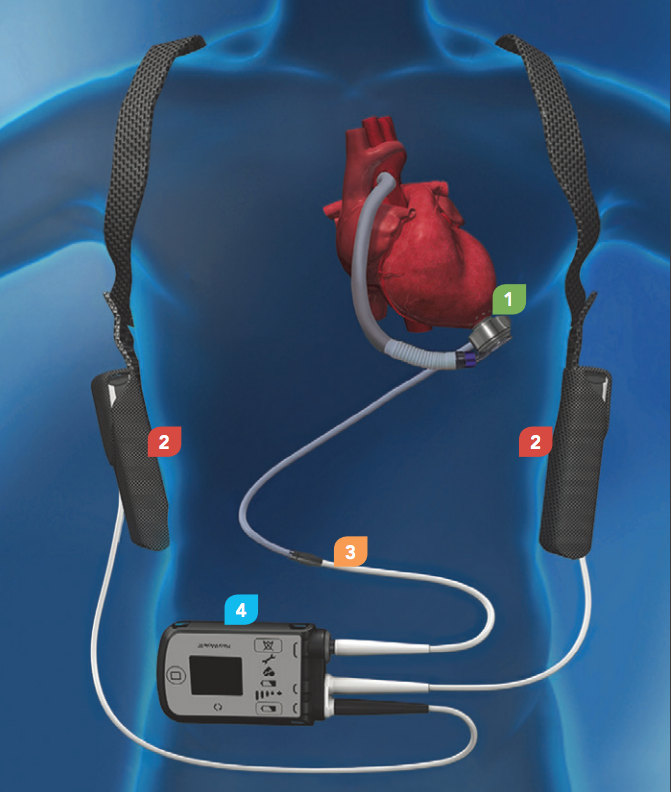 Heartmate 3 in en op lichaam