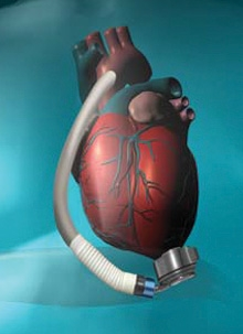 lvad_heartmate3_implant