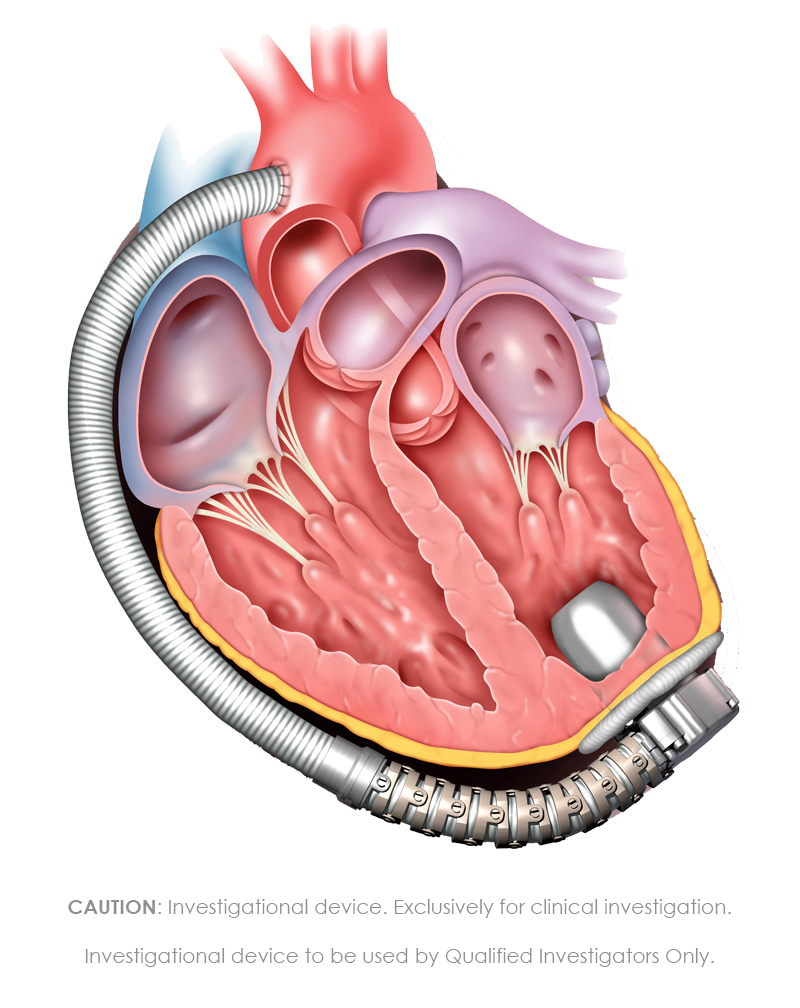 mvad-implanted-cross-section-hr